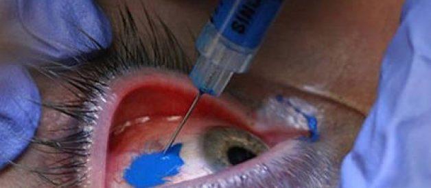 Tatuagem no olho – procedimento e resultados