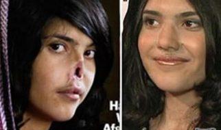 Aisha recuperou o nariz… e o sorriso 4