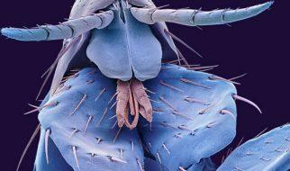 Impressionantes fotos de insectos 4
