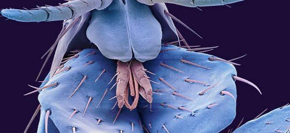Impressionantes fotos de insectos