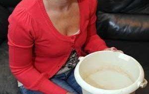 Mulher vomita mais de 100 vezes por dia 4