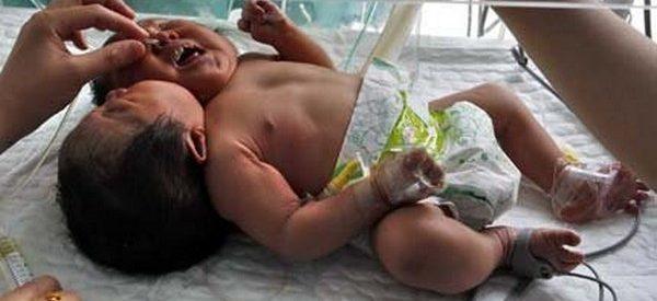 Nasceu um bebé com duas cabeças na China 1