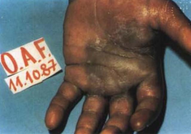 acidente radiologico de goiania